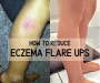 How to prevent eczema flare ups, 5 steps